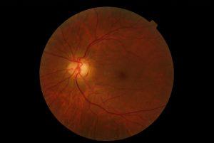 retina miope